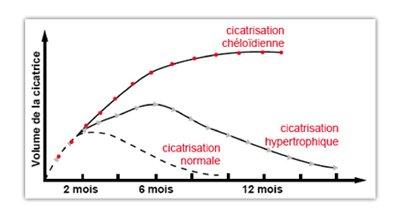 evolution-de-la-cicatrisation-normale-et-des-cicatrices-pathologiques-hypertrophiques-chéloides-source-Latarjet-Echinard